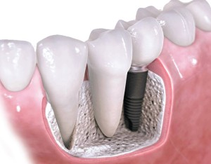 Implantes dentales madrid precios