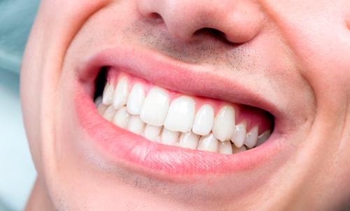 funda dientes precio